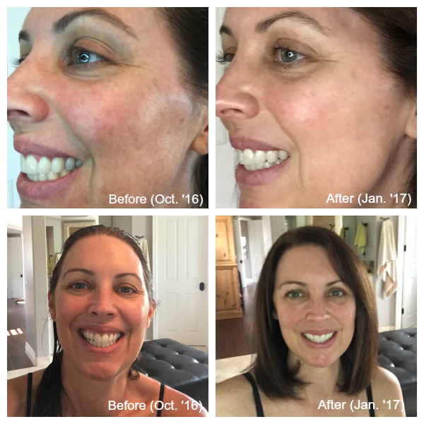 Arbonne RE9 Advanced Skin Care Review